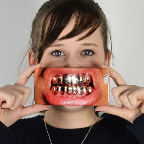 Giggle Beaver Gold Teeth Phone Case